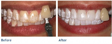 Before KöR Whitening & After KöR Whitening
