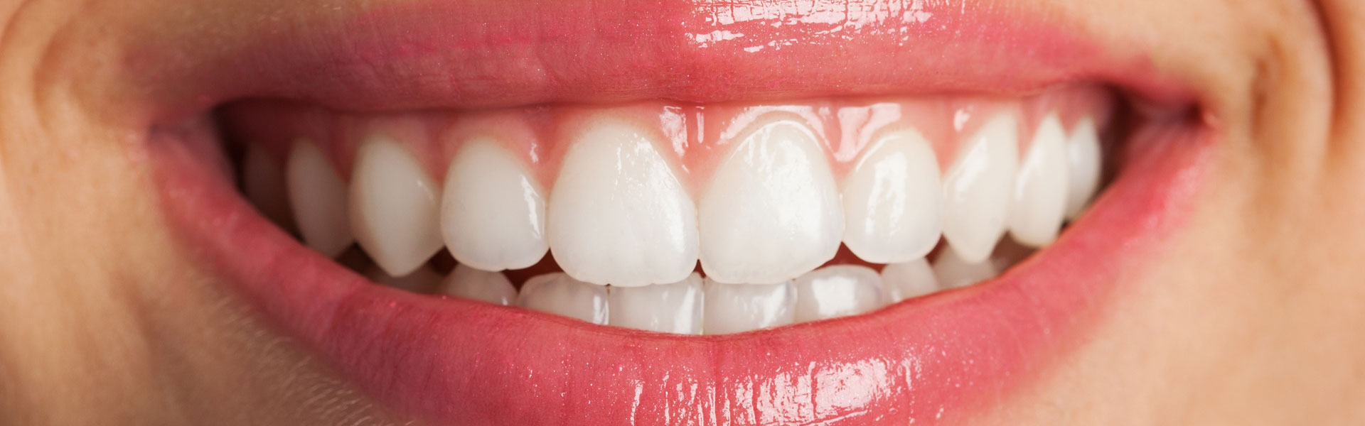 Everything You Need to Know About the KöR Teeth Whitening System
