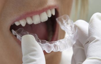 Answers to 3 Invisalign Frequently Asked Questions