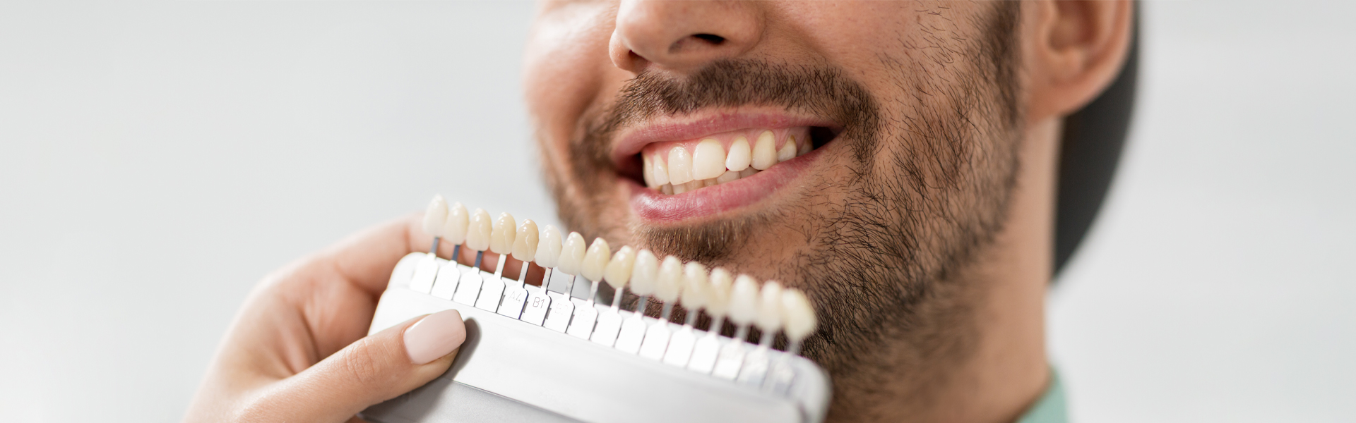 Different Ways to Use Dental Veneers In Dentistry