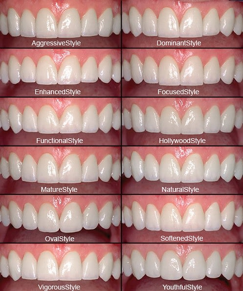 Invisalign Difference